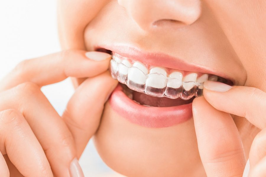 Type of Orthodontic appliances, know and check which is the best for you treatment