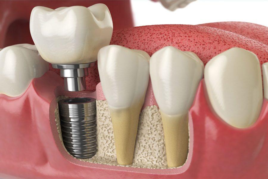 Saiba tudo sobre implante dentário: Como é feito e cuidados pré e pós-procedimento